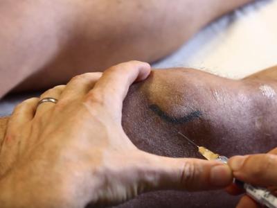 Infiltration du genou par produit cortisoné