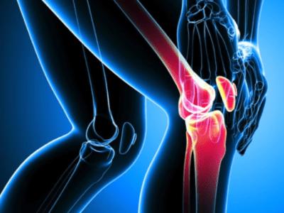 Examen clinique du genou rapide & de 1e intention
