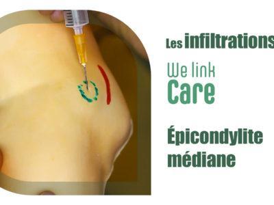 Infiltration - épicondylite médiane