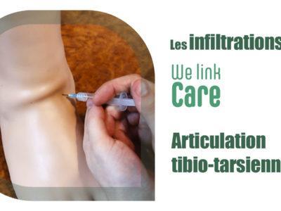 Infiltration - tibio-tarsienne